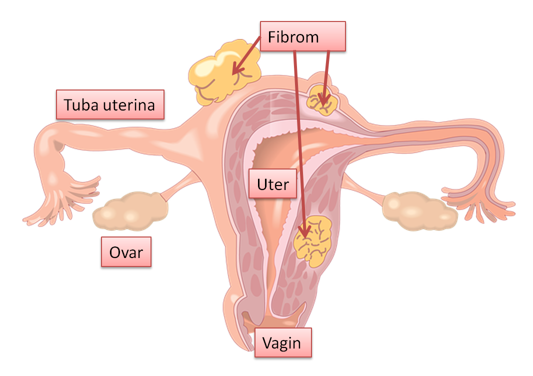 fibrom.png